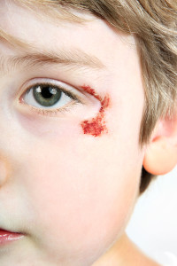 Personal Child Injury
